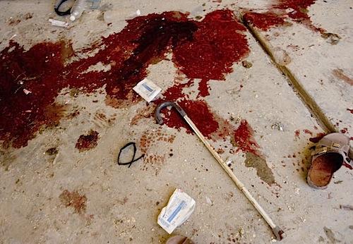 zoriah_iraq_war_fallujah_suicide_bomb_blood_cane_shoe
