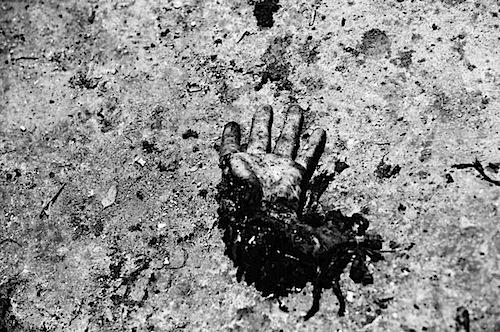 zoriah_iraq_war_fallujah_suicide_bomb_body_parts_hand